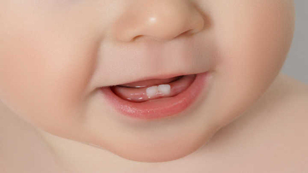 Baby's Teeth Started Showing Up – Here's What You Should Do!